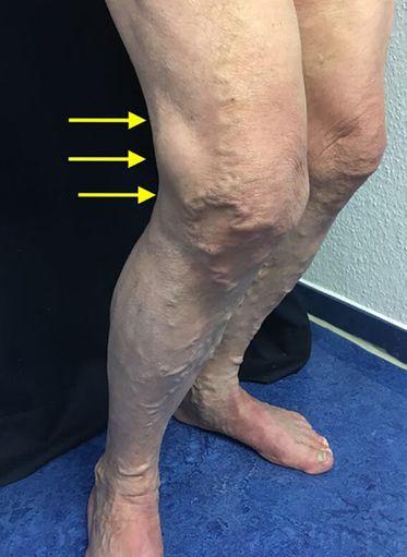 Venenbedingte Beinschmerzen - Allgemeinarzt.digital